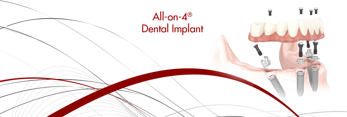 Santa Ana All-on-4 Dental Implants