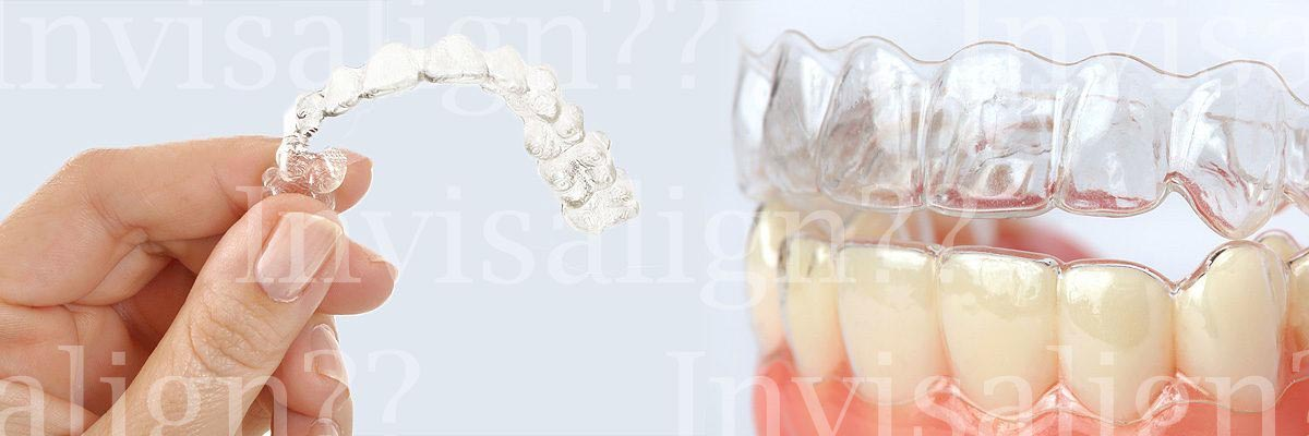 Santa Ana Does Invisalign® Really Work?