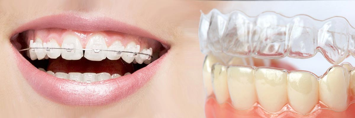 Santa Ana Which is Better Invisalign or Braces