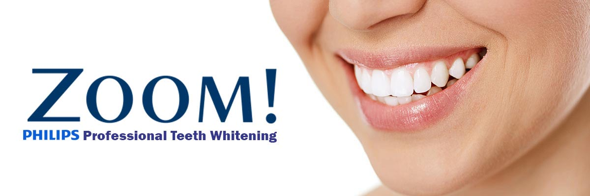 Santa Ana Zoom Teeth Whitening
