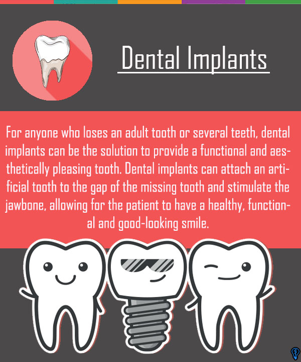 Dental Implants Santa Ana, CA