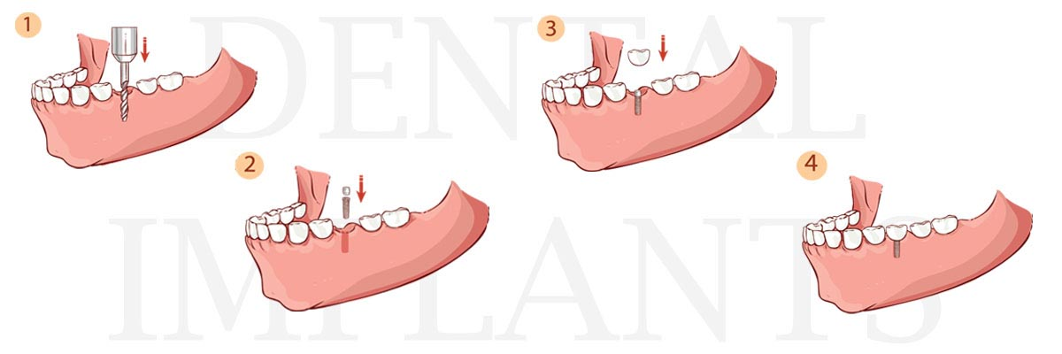 Santa Ana The Difference Between Dental Implants and Mini Dental Implants