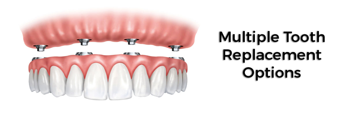 Santa Ana Multiple Teeth Replacement Options