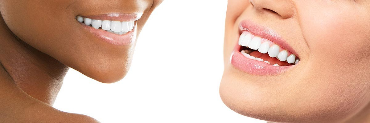 Santa Ana Teeth Whitening
